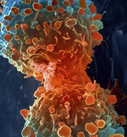 nowotwor szkoelnia